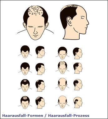 Das Öl von den Problemen mit der Haut vom Haar von der Zellulitis